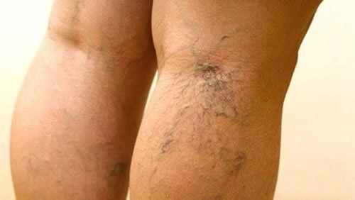 Настоянкою каланхое лікують варикоз вен